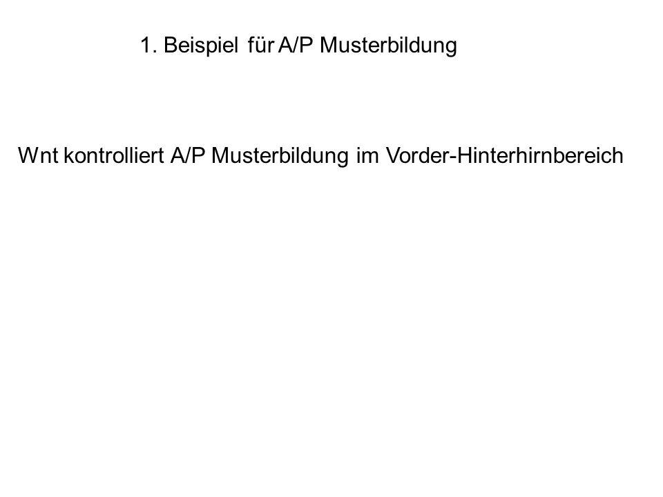 1. Beispiel für A/P Musterbildung Wnt kontrolliert A/P Musterbildung im Vorder-Hinterhirnbereich
