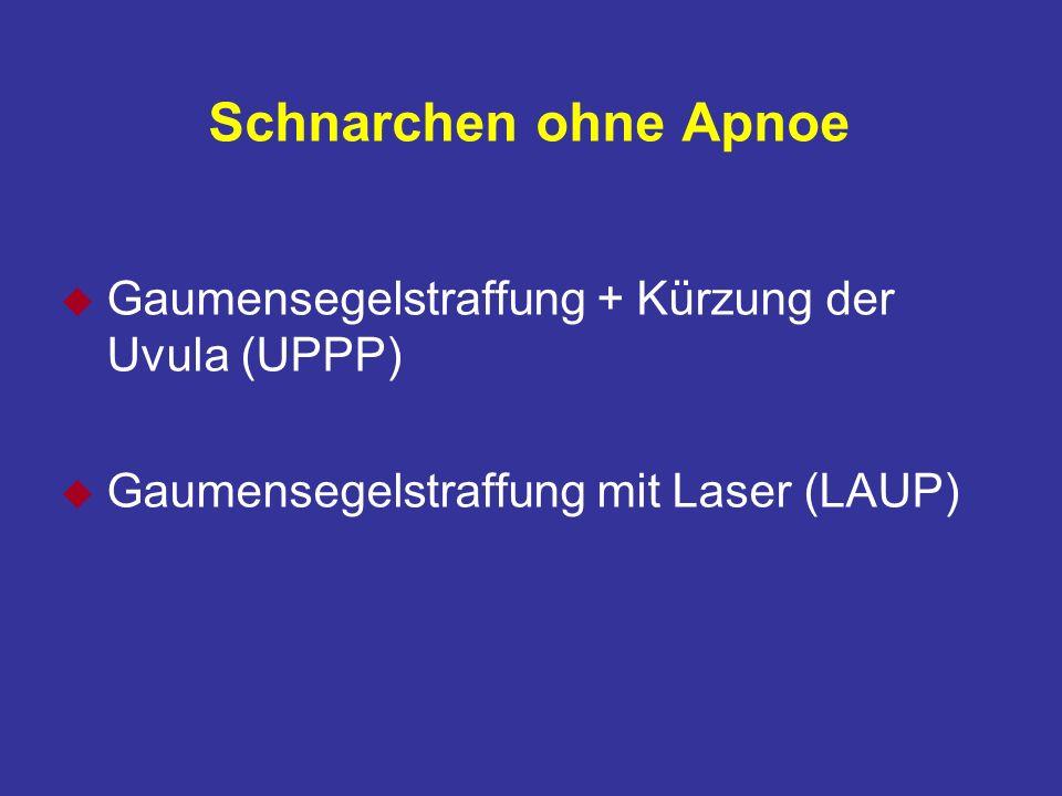 Schnarchen ohne Apnoe u Gaumensegelstraffung + Kürzung der Uvula (UPPP) u Gaumensegelstraffung mit Laser (LAUP)