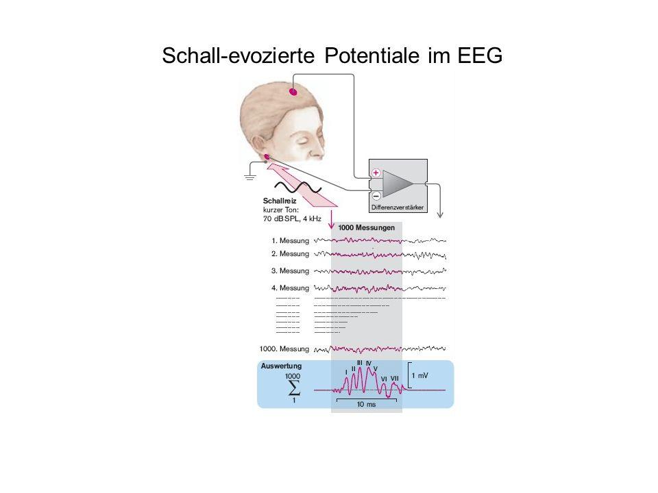 Schall-evozierte Potentiale im EEG