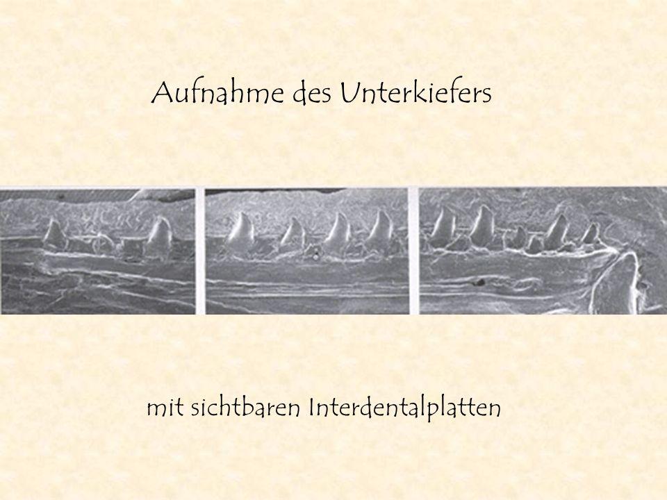 Aufnahme des Unterkiefers mit sichtbaren Interdentalplatten