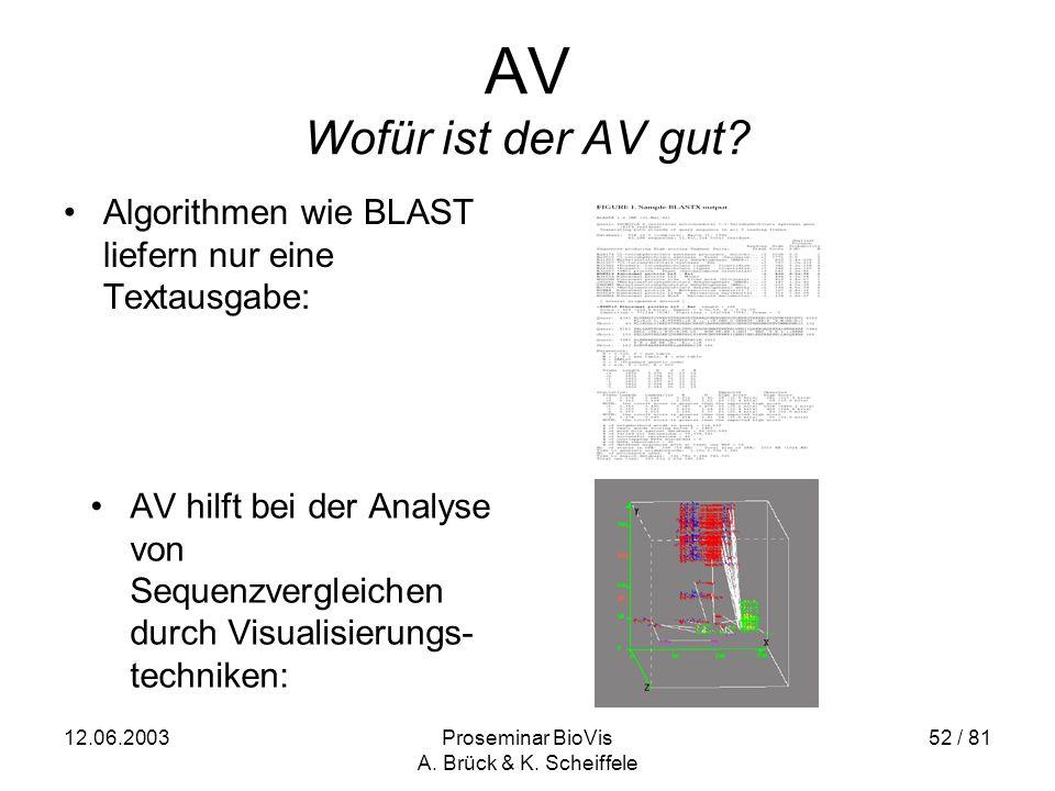 12.06.2003Proseminar BioVis A. Brück & K. Scheiffele 52 / 81 AV Wofür ist der AV gut.