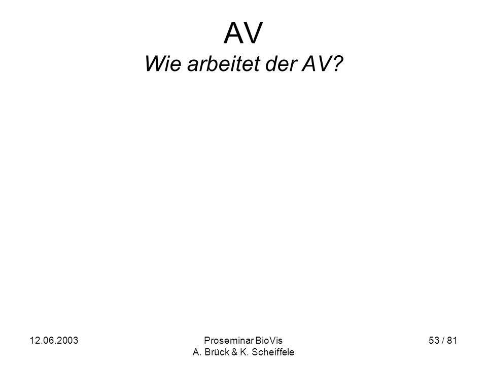 12.06.2003Proseminar BioVis A. Brück & K. Scheiffele 53 / 81 AV Wie arbeitet der AV?