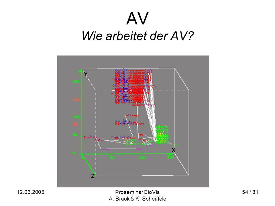 12.06.2003Proseminar BioVis A. Brück & K. Scheiffele 54 / 81 AV Wie arbeitet der AV?