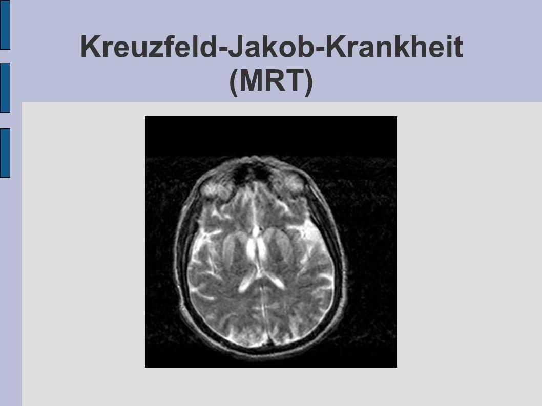 Kreuzfeld-Jakob-Krankheit (MRT)