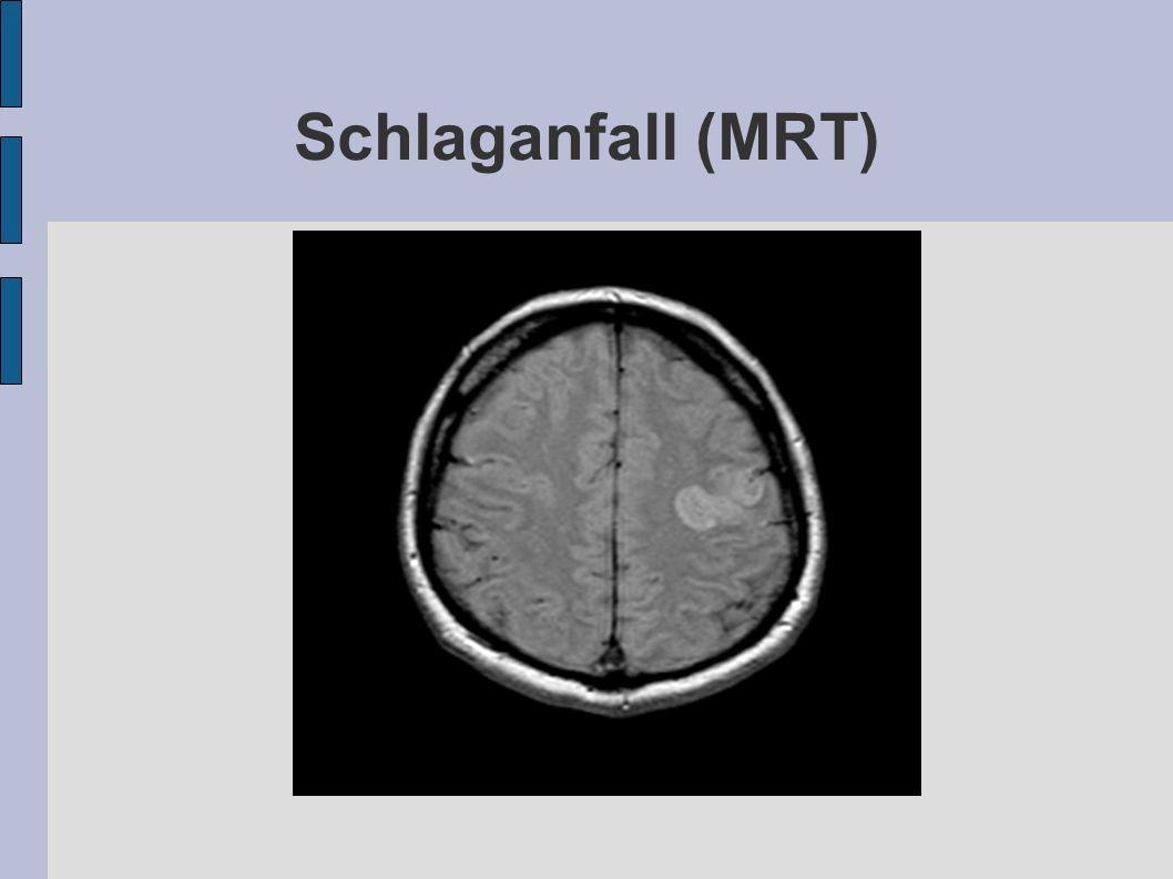 Schlaganfall (MRT)