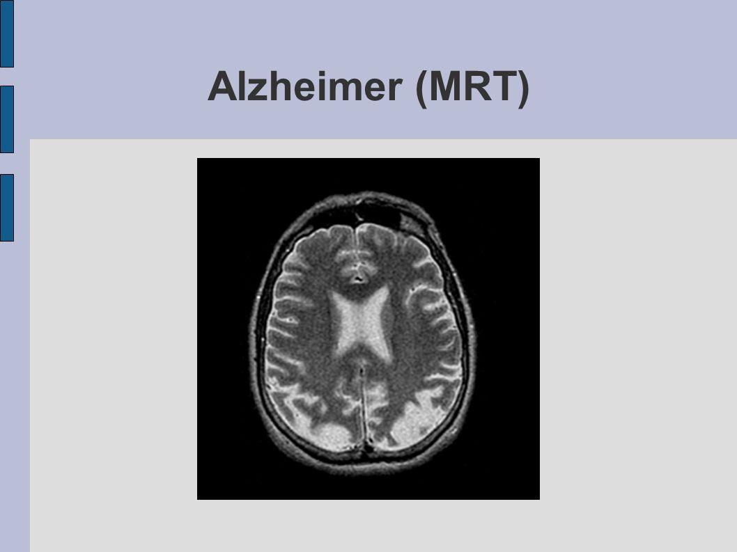 Alzheimer (MRT)