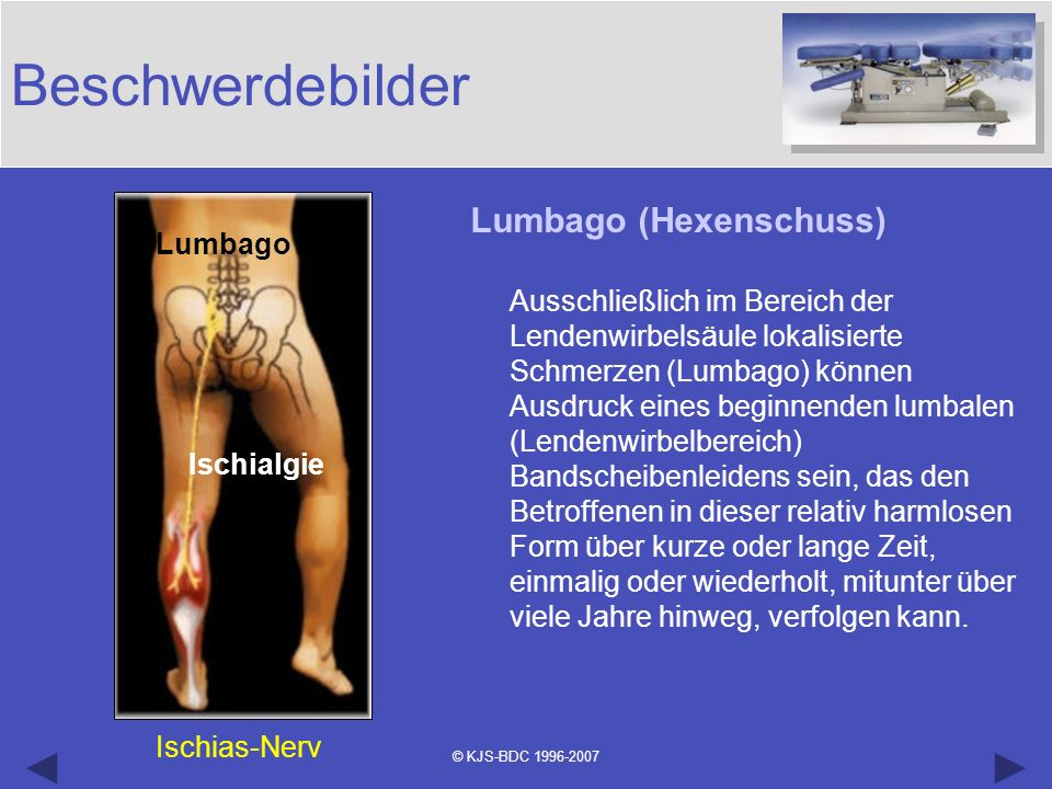 © KJS-BDC 1996-2007 Beschwerdebilder Lumbago (Hexenschuss) Ausschließlich im Bereich der Lendenwirbelsäule lokalisierte Schmerzen (Lumbago) können Aus