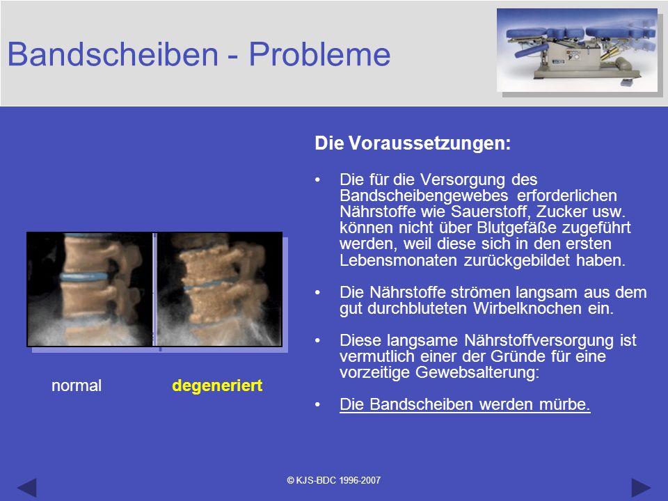 © KJS-BDC 1996-2007 Bandscheiben - Probleme Die Voraussetzungen: Die für die Versorgung des Bandscheibengewebes erforderlichen Nährstoffe wie Sauersto