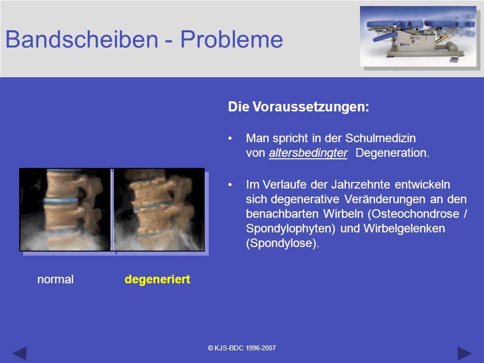 © KJS-BDC 1996-2007 Bandscheiben - Probleme normal degeneriert Die Voraussetzungen: Man spricht in der Schulmedizin von altersbedingter Degeneration.
