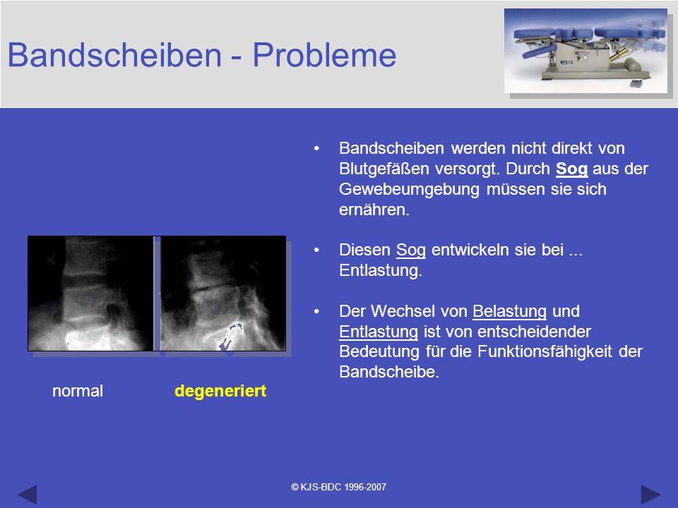 © KJS-BDC 1996-2007 Bandscheiben - Probleme normal degeneriert Bandscheiben werden nicht direkt von Blutgefäßen versorgt. Durch Sog aus der Gewebeumge