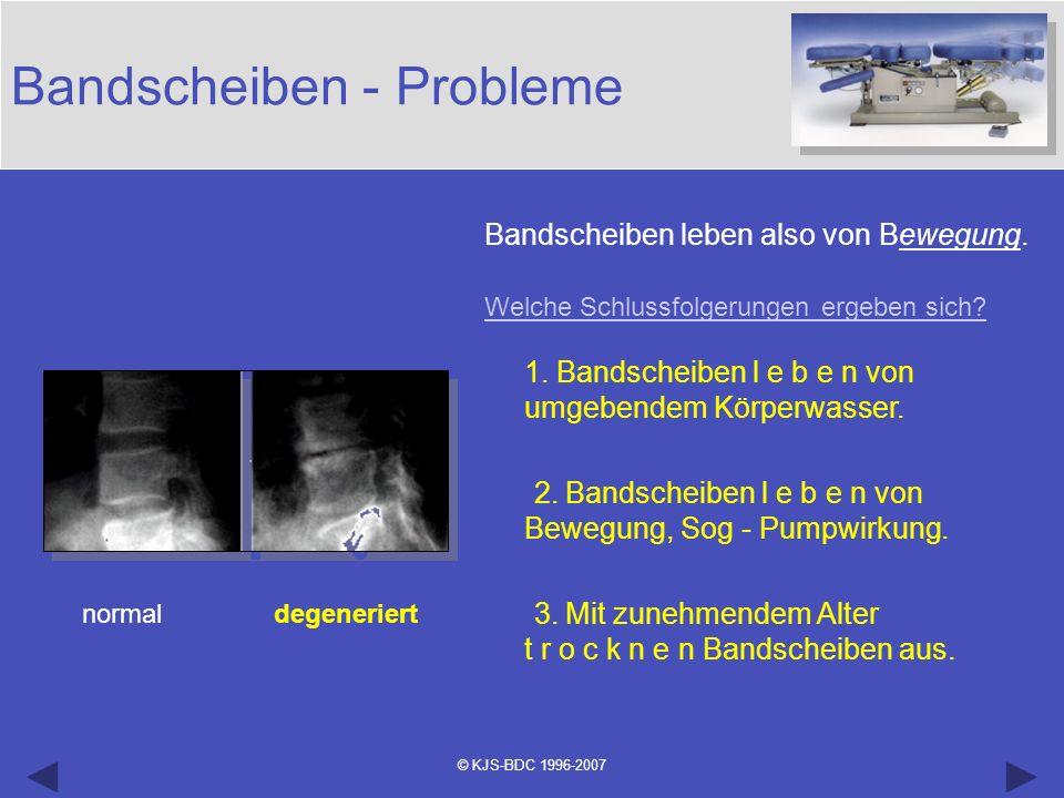 © KJS-BDC 1996-2007 Bandscheiben - Probleme normal degeneriert Bandscheiben leben also von Bewegung. Welche Schlussfolgerungen ergeben sich? 1. Bandsc