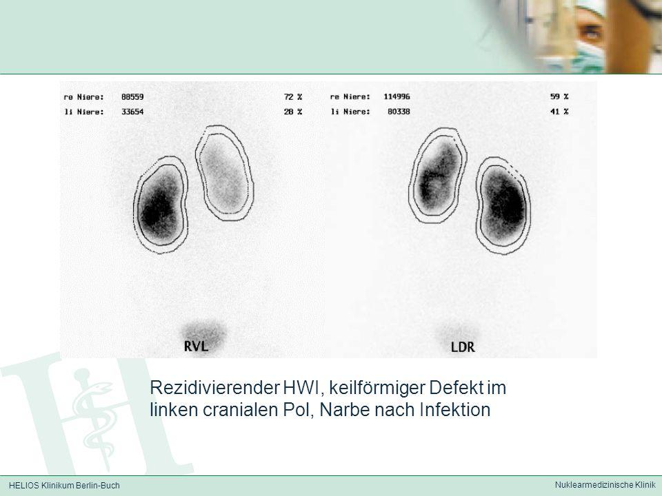 HELIOS Klinikum Berlin-Buch Nuklearmedizinische Klinik Rezidivierender HWI, keilförmiger Defekt im linken cranialen Pol, Narbe nach Infektion