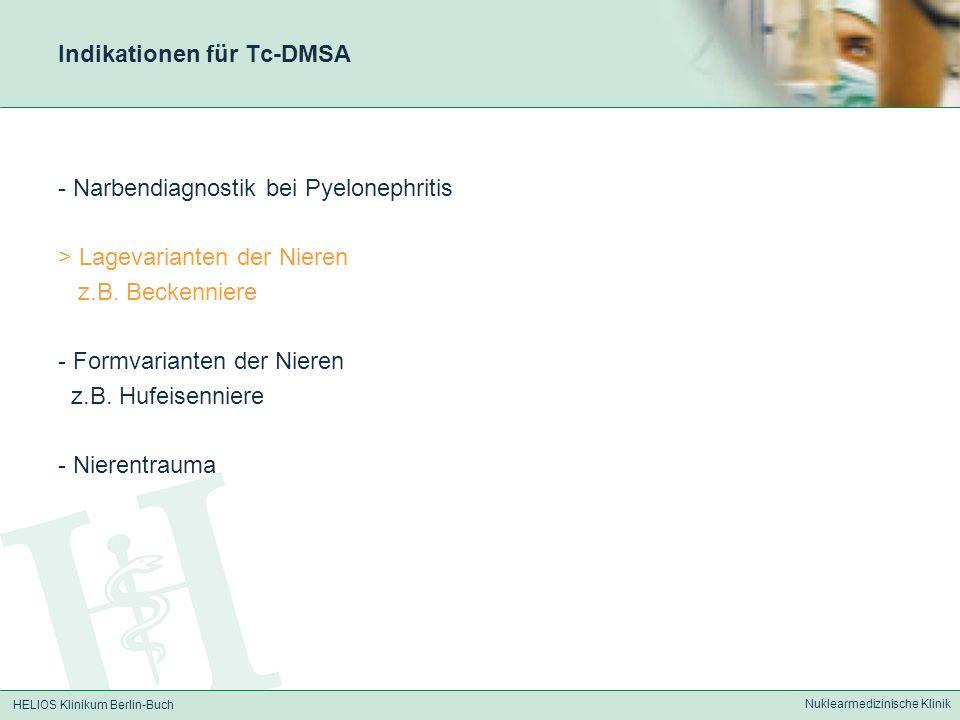 HELIOS Klinikum Berlin-Buch Nuklearmedizinische Klinik Indikationen für Tc-DMSA - Narbendiagnostik bei Pyelonephritis > Lagevarianten der Nieren z.B.
