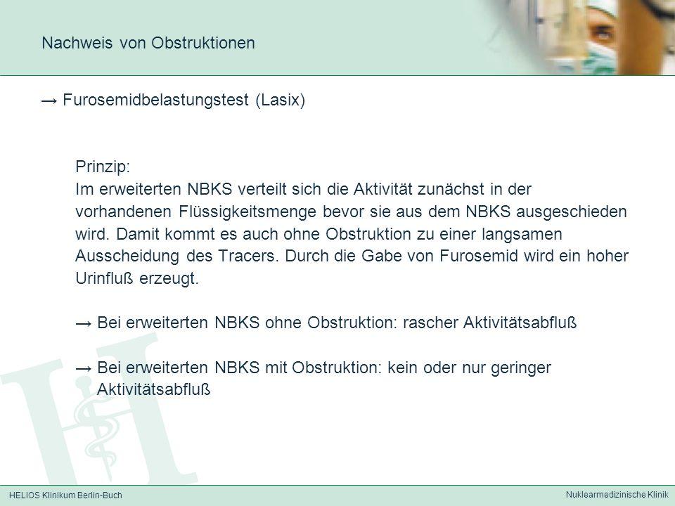 HELIOS Klinikum Berlin-Buch Nuklearmedizinische Klinik Nachweis von Obstruktionen Furosemidbelastungstest (Lasix) Prinzip: Im erweiterten NBKS verteil