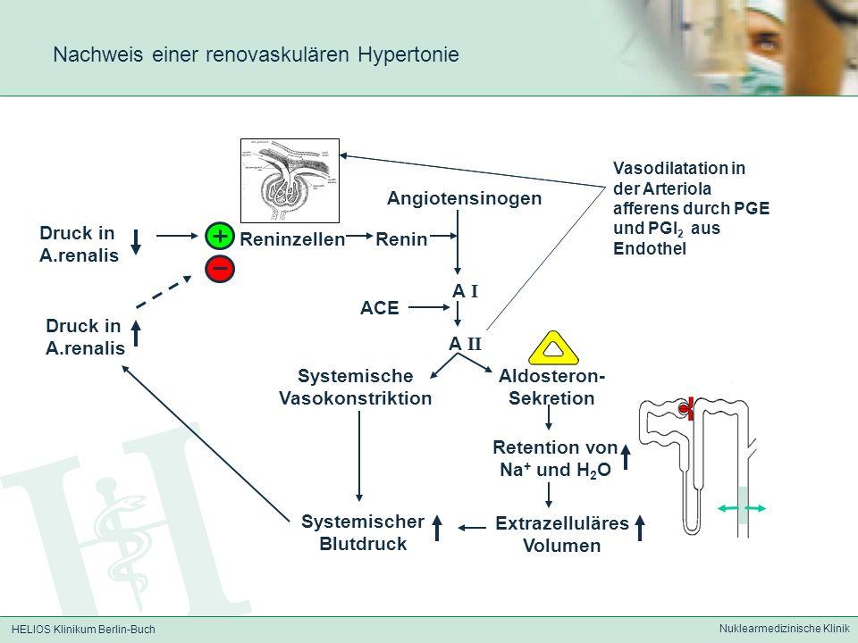 HELIOS Klinikum Berlin-Buch Nuklearmedizinische Klinik Nachweis einer renovaskulären Hypertonie Druck in A.renalis Renin Angiotensinogen A I Aldostero