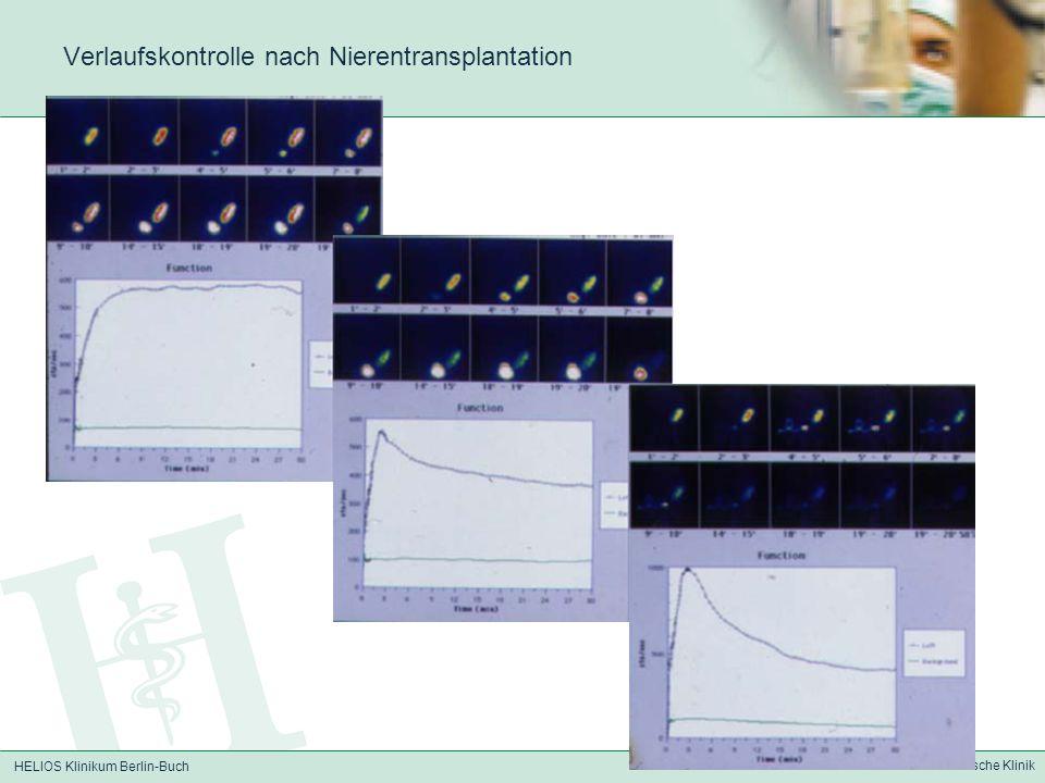HELIOS Klinikum Berlin-Buch Nuklearmedizinische Klinik Verlaufskontrolle nach Nierentransplantation