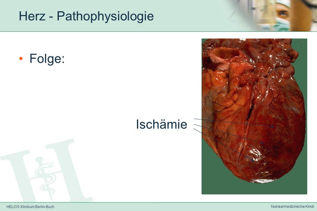 HELIOS Klinikum Berlin-Buch Nuklearmedizinische Klinik Herz - Pathophysiologie Coronarsklerose und Thrombus