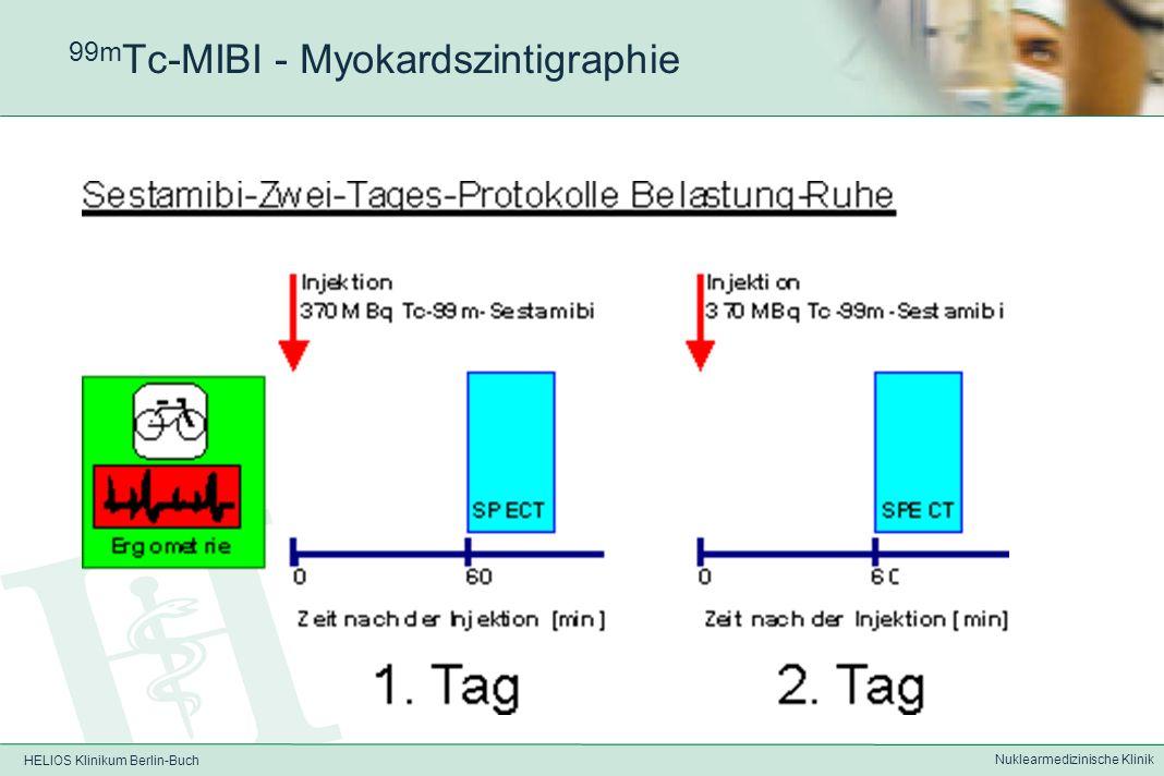 HELIOS Klinikum Berlin-Buch Nuklearmedizinische Klinik 201 Tl-Chlorid - Myokardszintigraphie