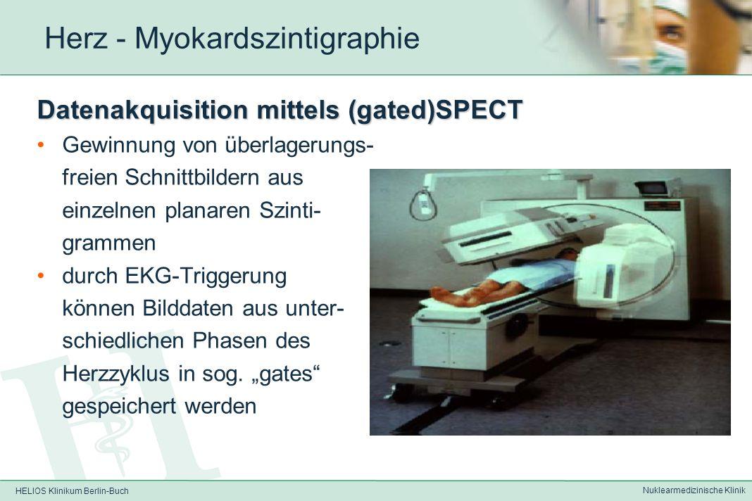 HELIOS Klinikum Berlin-Buch Nuklearmedizinische Klinik Herz - Myokardszintigaphie Medikamentöse Belastung Adenosin – 0,840mg/kg über 6min i.v.