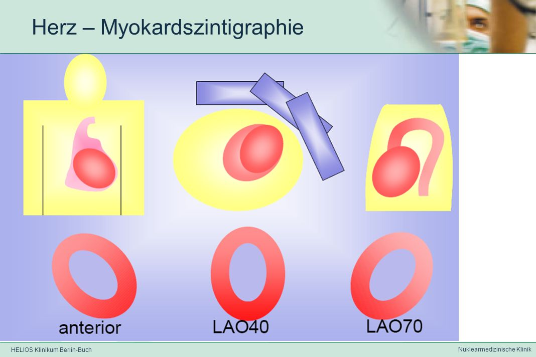HELIOS Klinikum Berlin-Buch Nuklearmedizinische Klinik Herz - Myokardszintigraphie Datenakquisition mittels (gated)SPECT Gewinnung von überlagerungs- freien Schnittbildern aus einzelnen planaren Szinti- grammen durch EKG-Triggerung können Bilddaten aus unter- schiedlichen Phasen des Herzzyklus in sog.