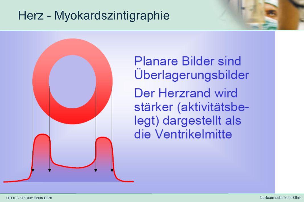 HELIOS Klinikum Berlin-Buch Nuklearmedizinische Klinik Herz – Myokardszintigraphie