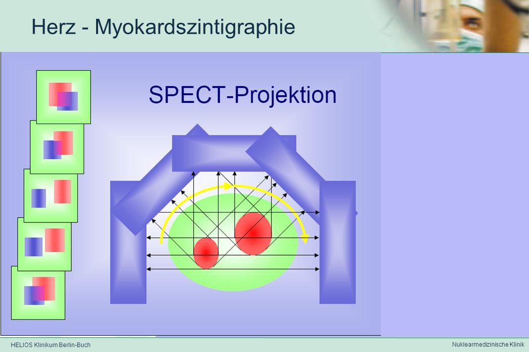 HELIOS Klinikum Berlin-Buch Nuklearmedizinische Klinik Herz - Myokardszintigraphie SPECT - Projektionen