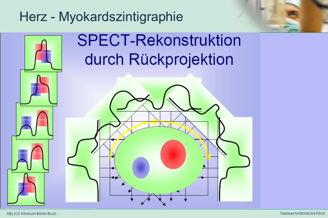HELIOS Klinikum Berlin-Buch Nuklearmedizinische Klinik Herz - Myokardszintigraphie