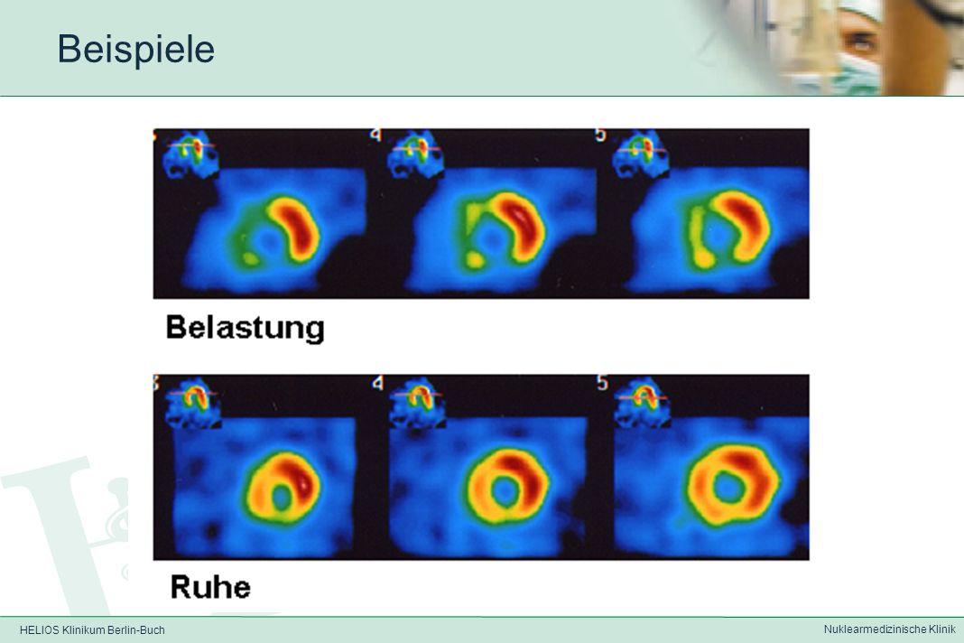 HELIOS Klinikum Berlin-Buch Nuklearmedizinische Klinik Beispiele