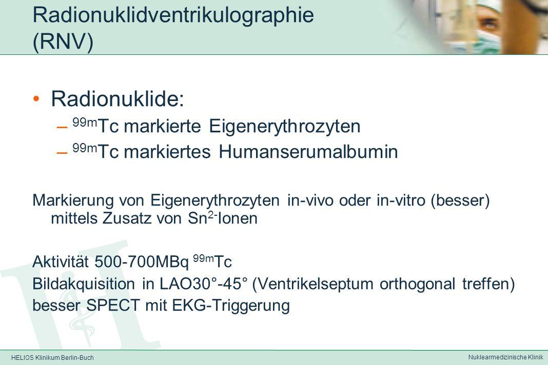 HELIOS Klinikum Berlin-Buch Nuklearmedizinische Klinik Radionuklidventrikulographie (RNV) Heute kaum in klinischer Routine da aufwändig Zur Erfassung