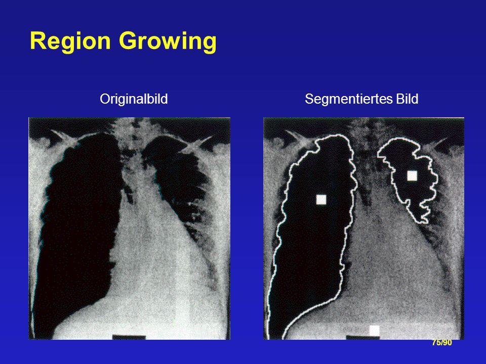 75/90 Region Growing Originalbild Segmentiertes Bild