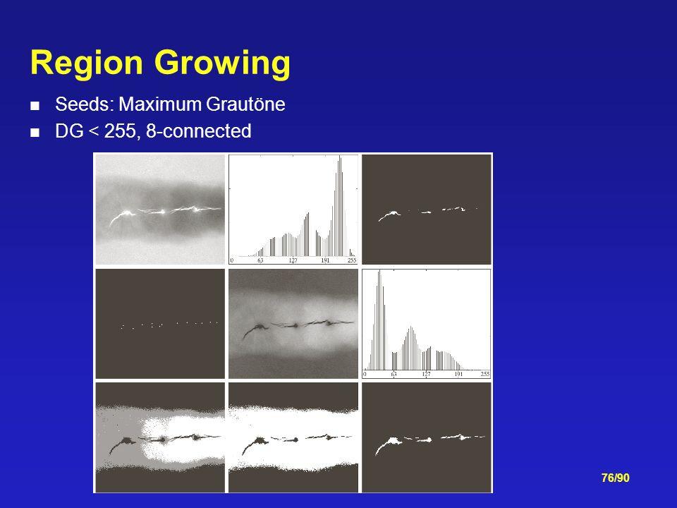 76/90 Region Growing Seeds: Maximum Grautöne DG < 255, 8-connected