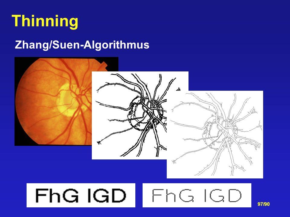 97/90 Zhang/Suen-Algorithmus Thinning