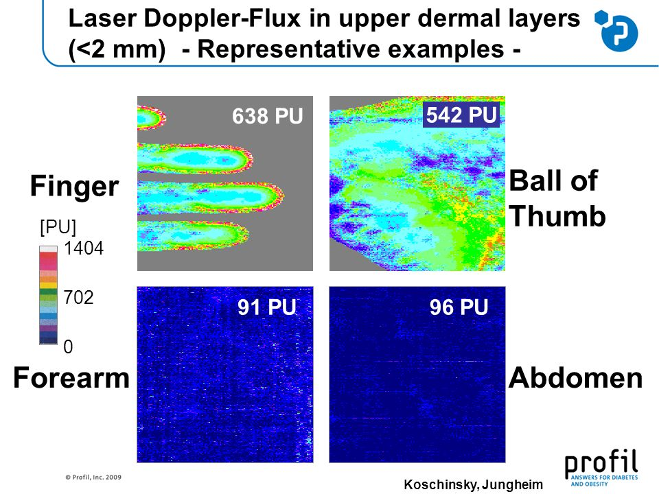 Laser Doppler-Flux in upper dermal layers (<2 mm) - Representative examples - Forearm 91 PU Finger 638 PU 542 PU Abdomen Ball of Thumb 96 PU 1404 [PU] 702 0 Koschinsky, Jungheim