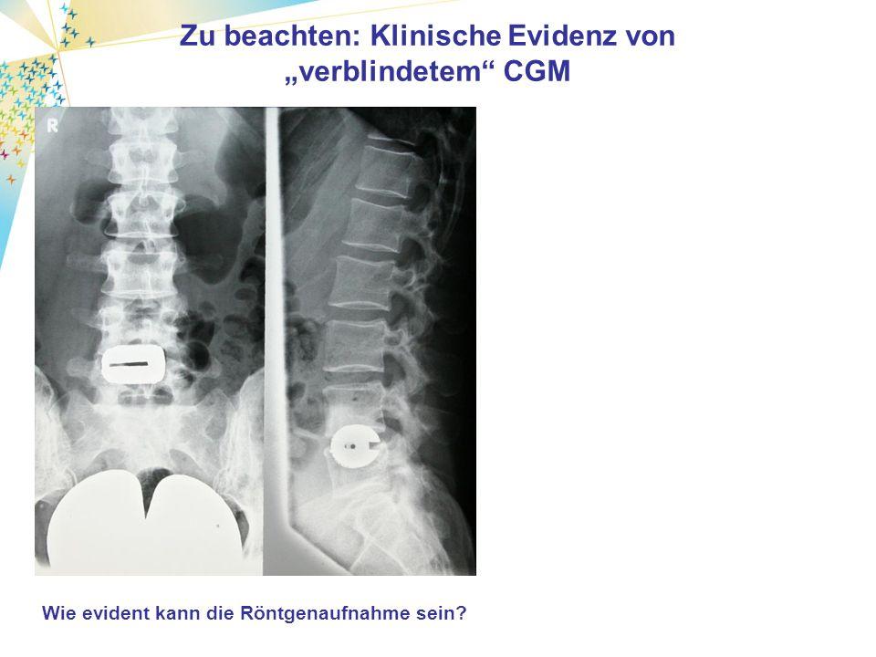 Wie evident kann Diagnostik sein Zu beachten: Klinische Evidenz von verblindetem CGM