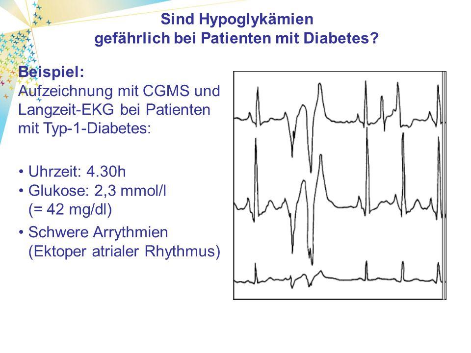 Beispiel: Aufzeichnung mit CGMS und Langzeit-EKG bei Patienten mit Typ-1-Diabetes: Uhrzeit: 4.30h Glukose: 2,3 mmol/l (= 42 mg/dl) Sind Hypoglykämien gefährlich bei Patienten mit Diabetes.