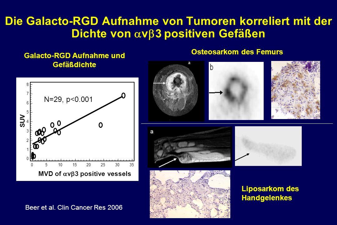 Die Galacto-RGD Aufnahme von Tumoren korreliert mit der Dichte von v 3 positiven Gefäßen MVD of v 3 positive vessels SUV 8 7 6 5 4 3 2 1 0 05101520253035 p < 0.0001; R = 0.81 Beer et al.