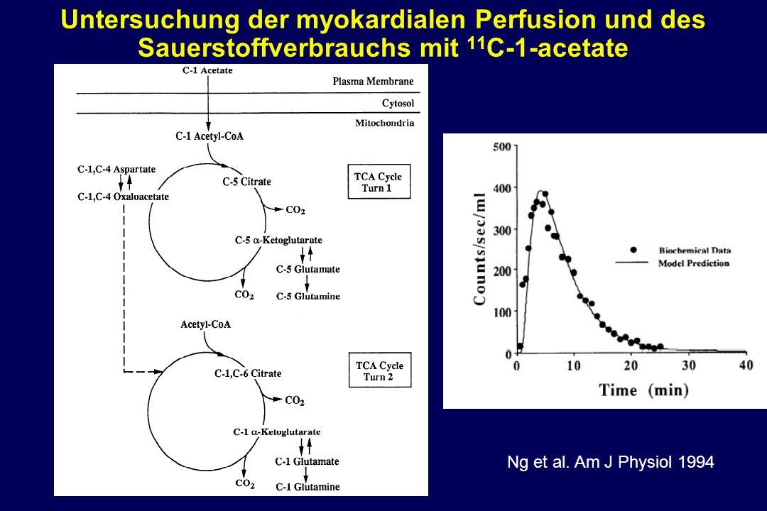 Untersuchung der myokardialen Perfusion und des Sauerstoffverbrauchs mit 11 C-1-acetate Ng et al. Am J Physiol 1994