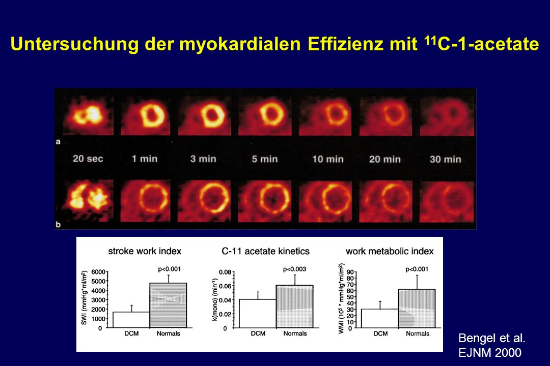 Bengel et al. EJNM 2000 Untersuchung der myokardialen Effizienz mit 11 C-1-acetate