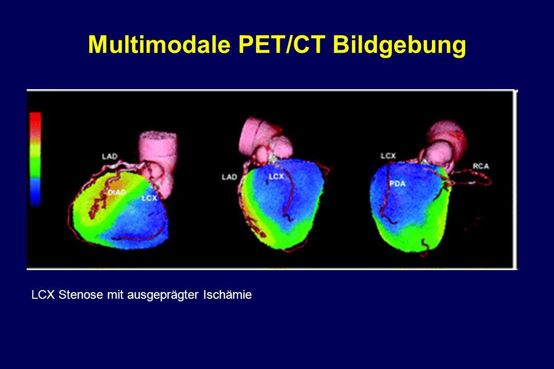 Multimodale PET/CT Bildgebung LCX Stenose mit ausgeprägter Ischämie