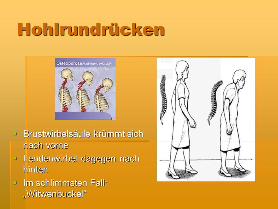 Hohlrundrücken Brustwirbelsäule krümmt sich nach vorne Brustwirbelsäule krümmt sich nach vorne Lendenwirbel dagegen nach hinten Lendenwirbel dagegen n