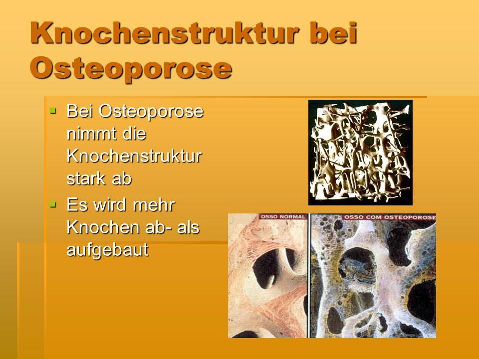 Knochenstruktur bei Osteoporose Bei Osteoporose nimmt die Knochenstruktur stark ab Bei Osteoporose nimmt die Knochenstruktur stark ab Es wird mehr Kno
