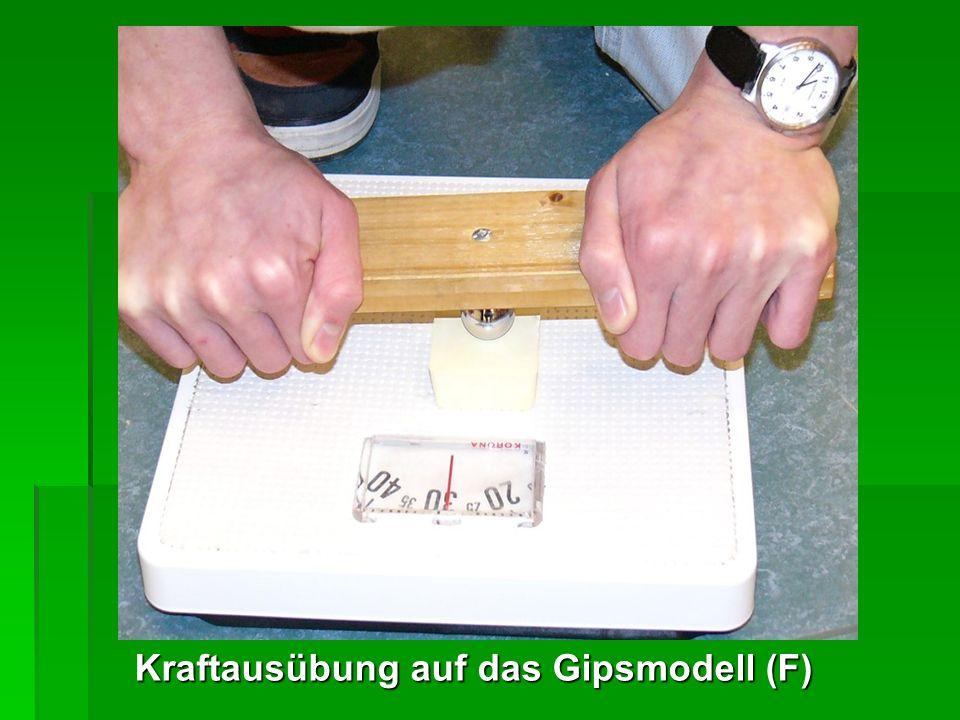 Kraftausübung auf das Gipsmodell (F)