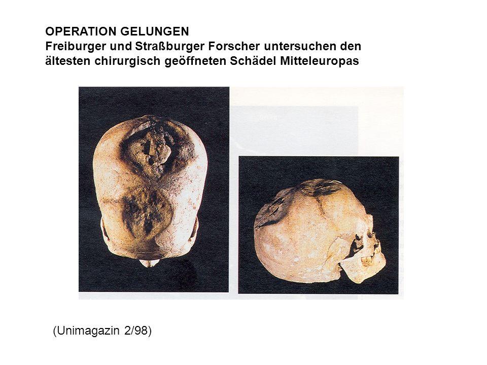 OPERATION GELUNGEN Freiburger und Straßburger Forscher untersuchen den ältesten chirurgisch geöffneten Schädel Mitteleuropas (Unimagazin 2/98)