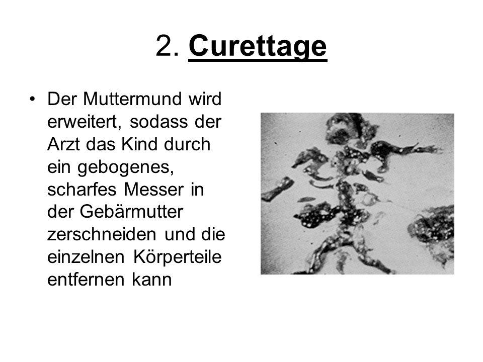 2. Curettage Der Muttermund wird erweitert, sodass der Arzt das Kind durch ein gebogenes, scharfes Messer in der Gebärmutter zerschneiden und die einz