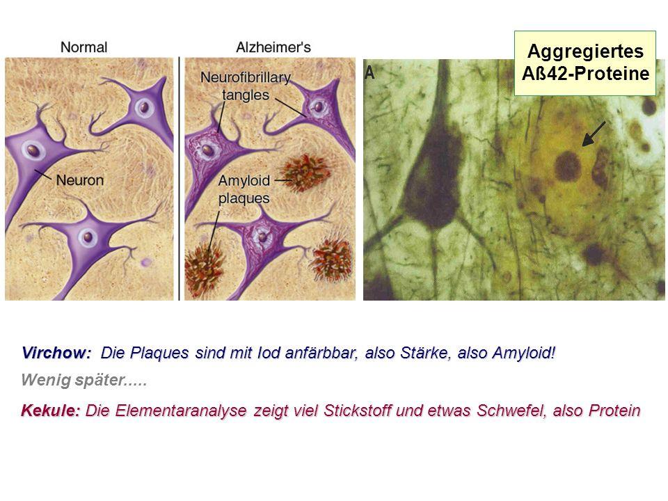 Aggregiertes Aß42-Proteine Virchow: Die Plaques sind mit Iod anfärbbar, also Stärke, also Amyloid.