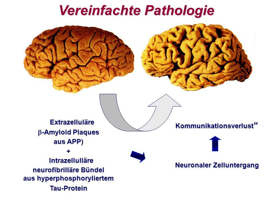 Vereinfachte Pathologie Extrazelluläre -Amyloid Plaques -Amyloid Plaques aus APP) + Intrazellulläre Intrazellulläre neurofibrilläre Bündel aus hyperphosphoryliertem Tau-Protein Kommunikationsverlust Kommunikationsverlust Neuronaler Zelluntergang