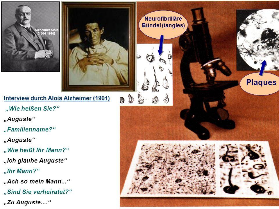 Plaques Neurofibrilläre Bündel (tangles) Interview durch Alois Alzheimer (1901) Wie heißen Sie.