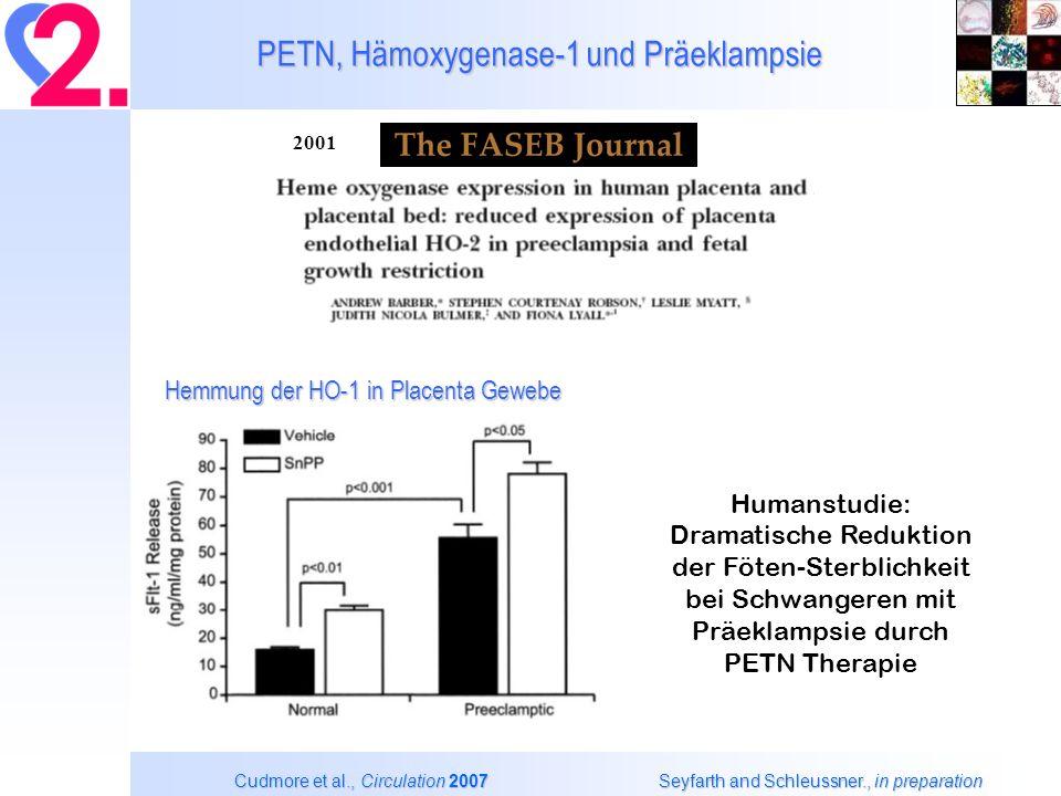Nitroglyzerin Bioaktivierung an der isolierten ALDH Vergleich der ALDH-1 und ALDH-2 Isoform Beretta et al.