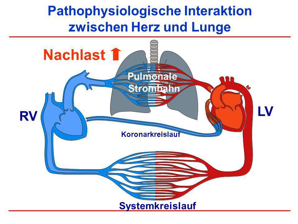 Pathophysiologische Interaktion zwischen Herz und Lunge RV LV Systemkreislauf Pulmonale Strombahn Koronarkreislauf Nachlast