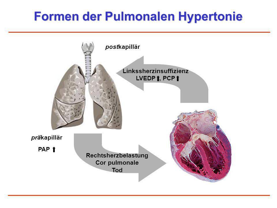 Formen der Pulmonalen Hypertonie postkapillär präkapillär PAP Rechtsherzbelastung Cor pulmonale Tod Linkssherzinsuffizienz LVEDP, PCP